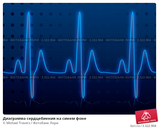 diagramma-serdtsebieniya-na-sinem-fone-0003322904-preview.jpg